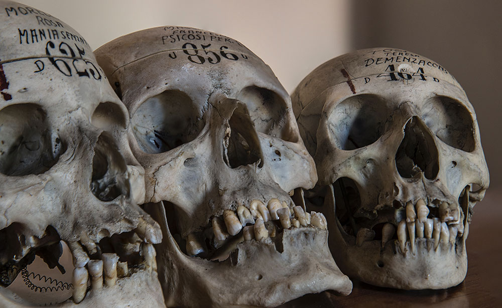 Forensic Anthropology Clues In The Bones True Crime Forensics Podcasts Games Books Latest News